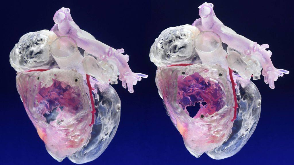 Science Saturday: Evolution of cardiac regeneration