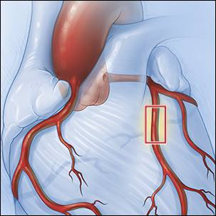 medical illustration of a coronary artery stent coronary revascularization