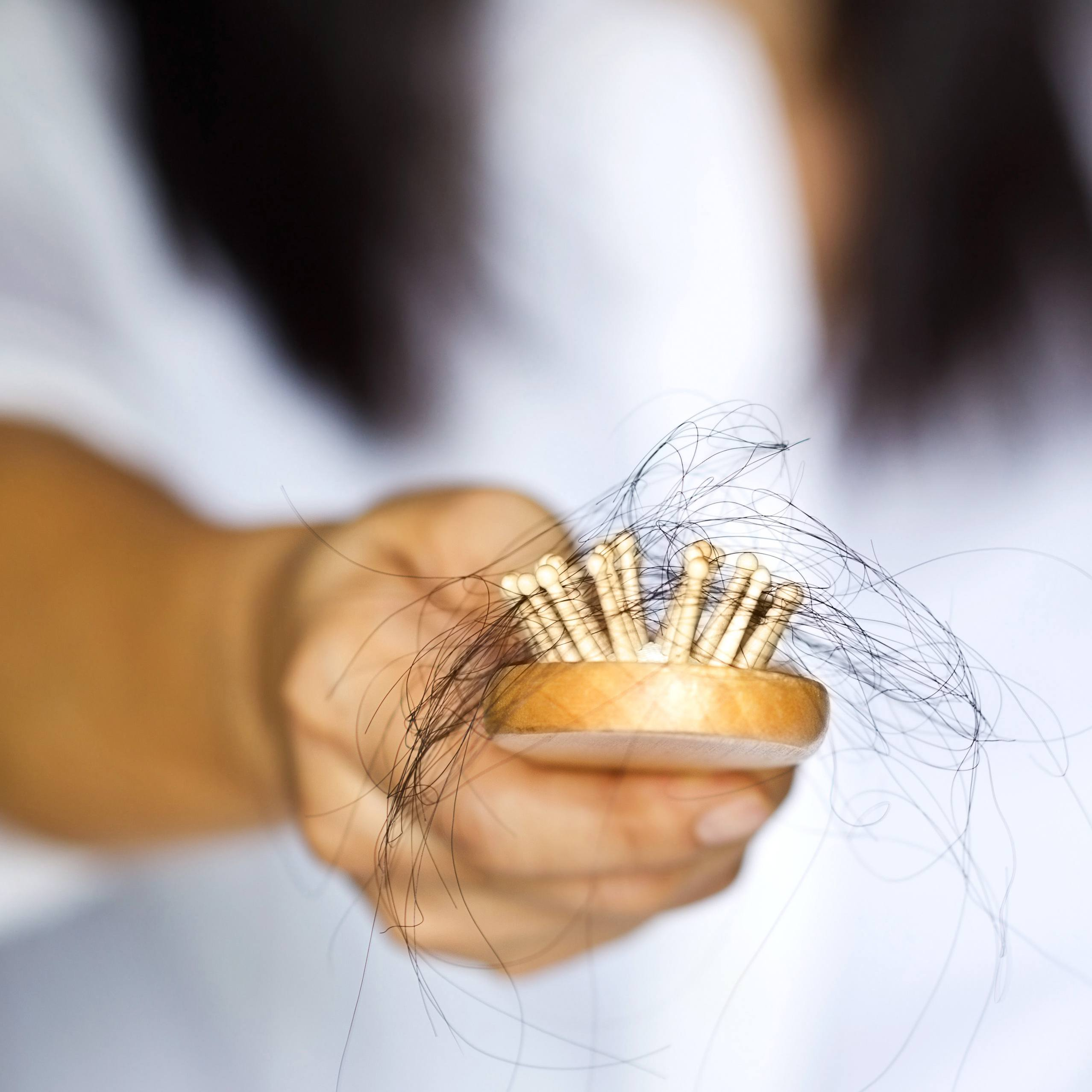 closeup of a woman's hand holding a hairbrush with clumps of hair representing hair loss