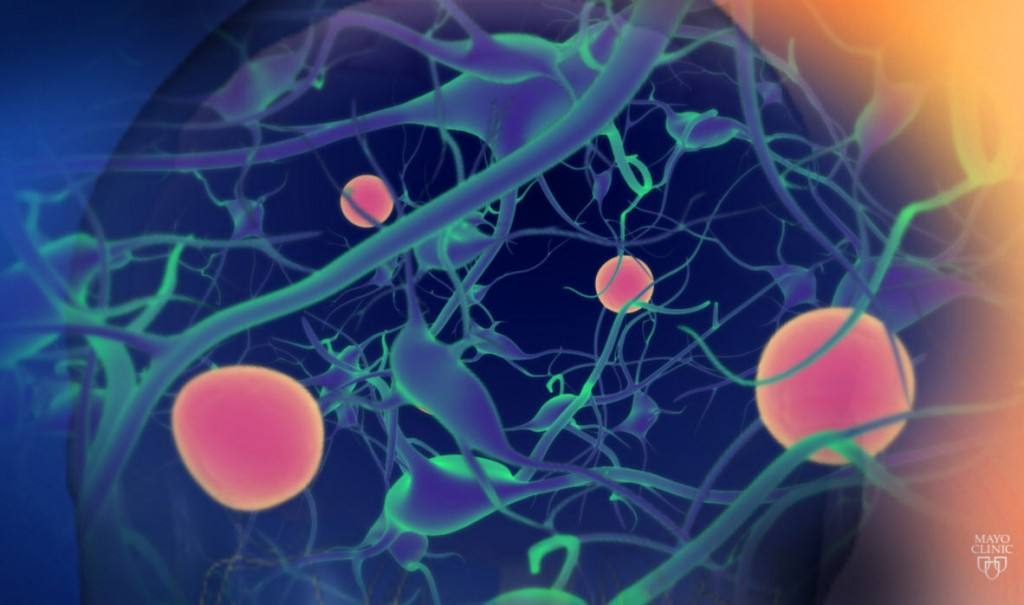 medical illustration of neurons related to ALS-neurons