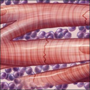medical illustration depicting inflames heart muscle, heart cells involved with myocarditis