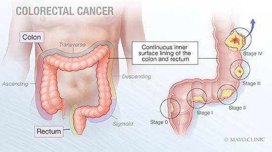 Mayo Clinic Q&A podcast: Screening for colorectal cancer can be prevention