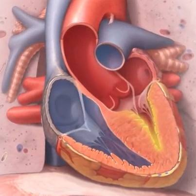 medical illustration of heart with hypertrophic cardiomyopathy
