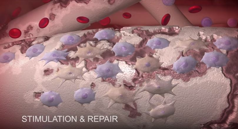 Regenerative Medicine Facilities and Expertise in Florida