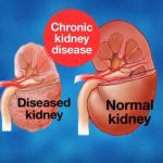 Stem Cells and Chronic Kidney Disease