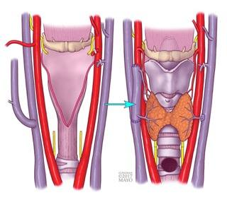Image showing schematic of larynx transplant