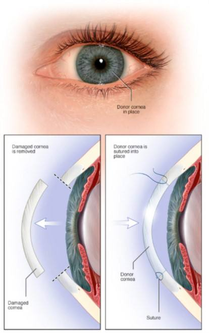 This image has an empty alt attribute; its file name is Full-thickness-corneal-transplant-2021-03-08-130904-1.jpg
