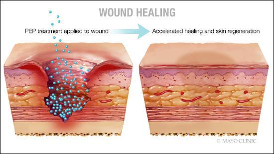Preclinical discover triggers wound healing
