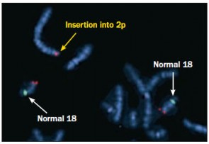 Duplicated region of chromosome 18, which is present on chromosome 2p due to an insertional translocation Green = 18 centromere, Red = 18q23