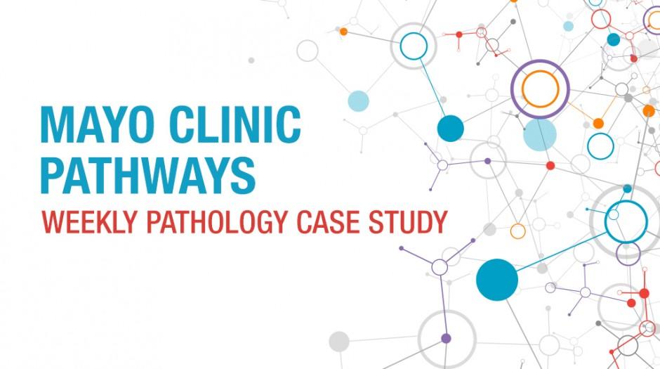 mayoclinic-pathways-feature