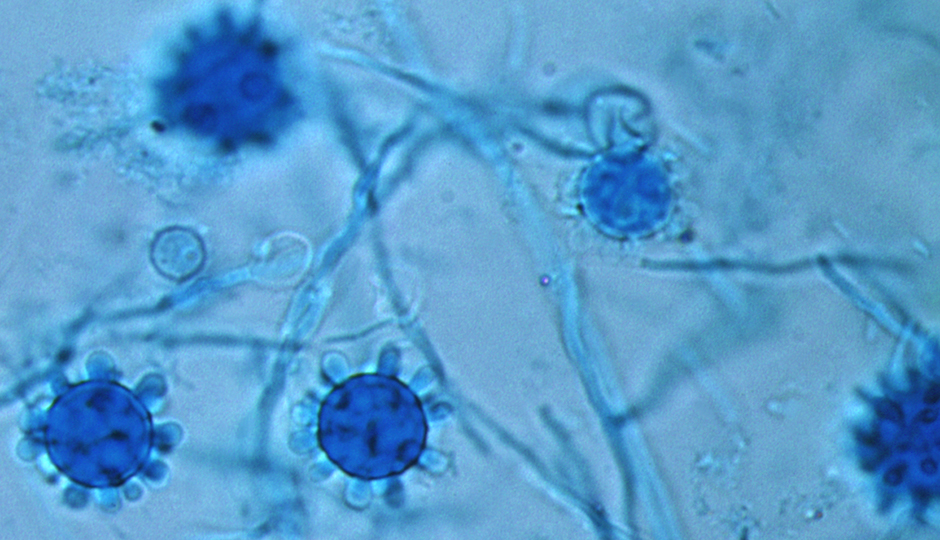 histoplasma-capsulatum