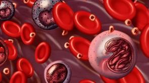 Leukemia-960x540