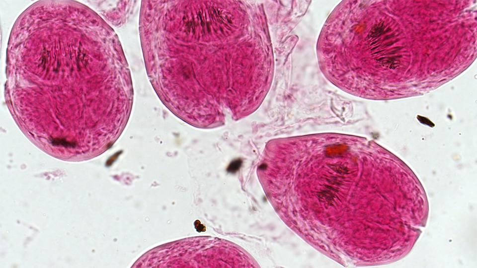 parasite-11-23-4