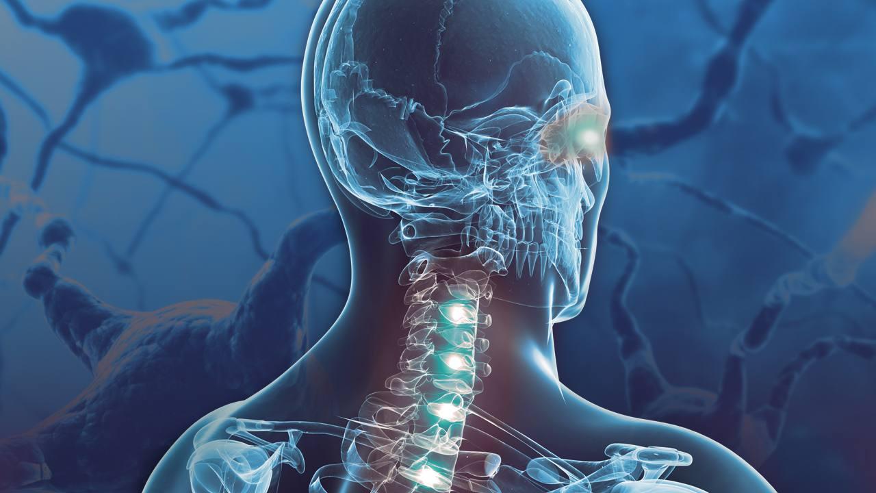 Mayo Clinic Develops First-in-U S  Neurology Test to