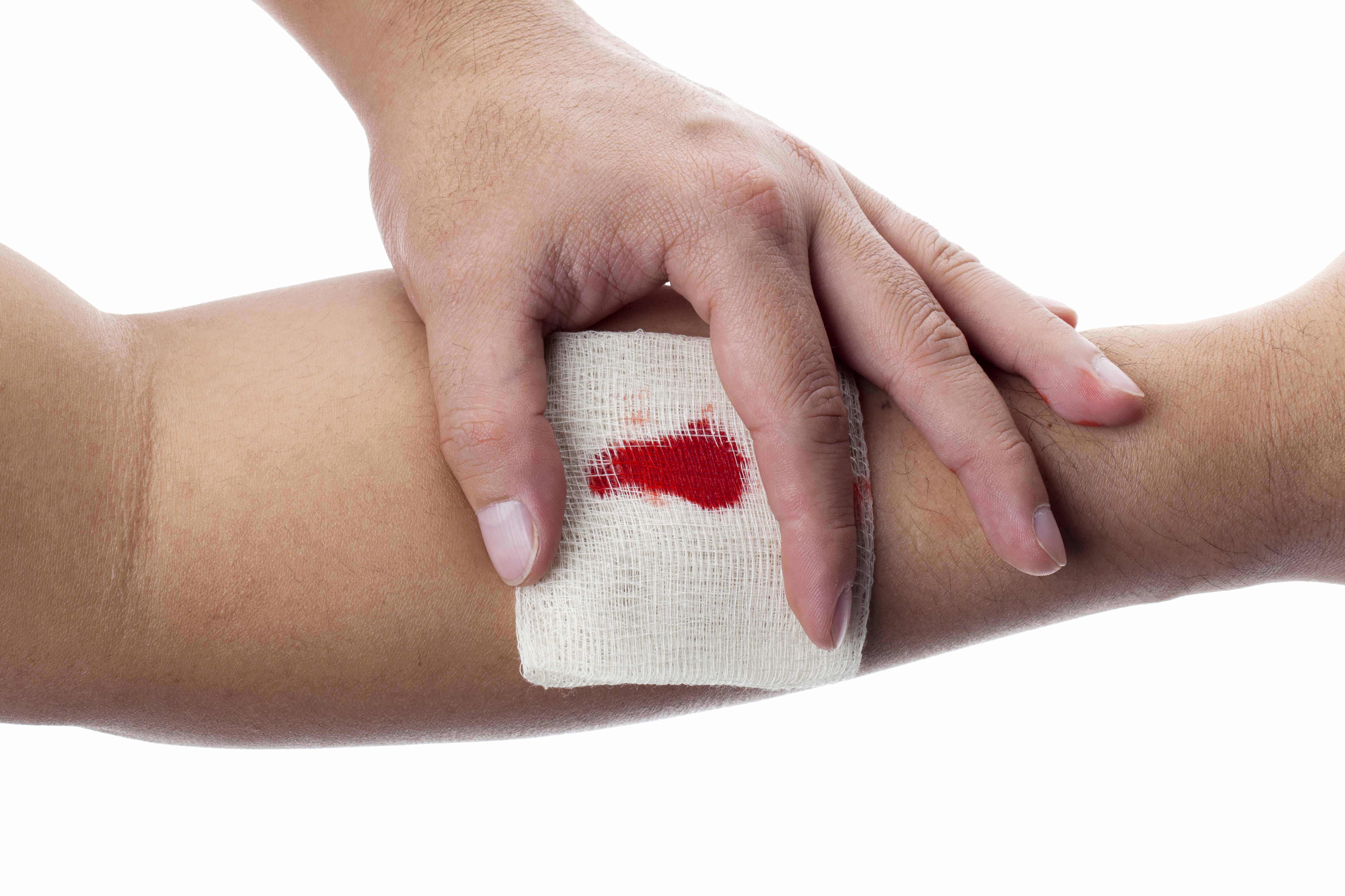 What to do with bleeding