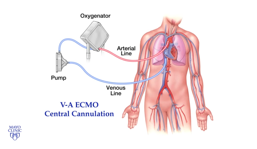 ECMO Rounds: Crash Course