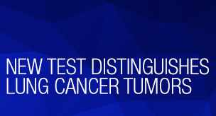 New test distinguishes lung cancer tumors