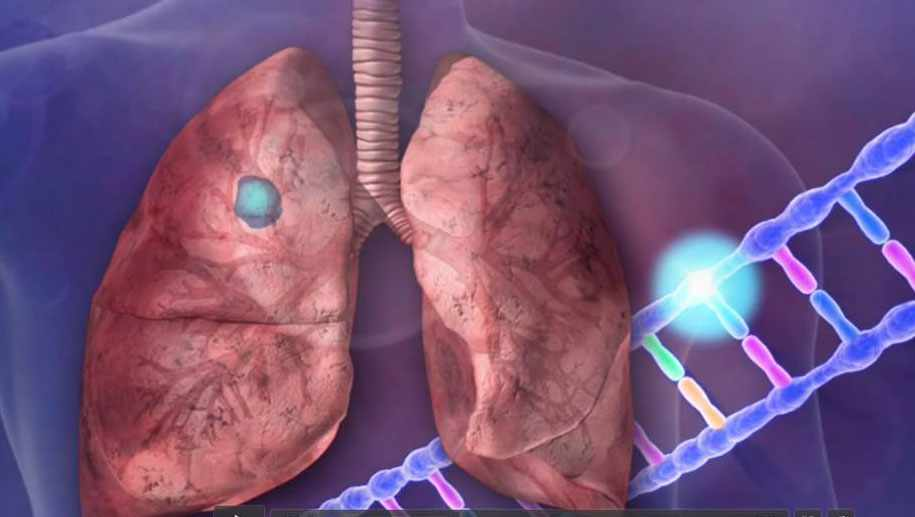 Biomarkers-lung