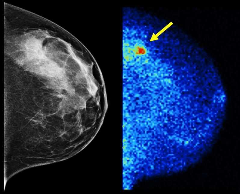 Molecular Breast Imaging (right) detected 3.6 times as many invasive cancers as digital mammography (left) in the latest study of more than 1,500 women with dense breast tissue. About half of screening-age women have dense breast tissue, which digital mammography renders the same whitish shade as tumors.