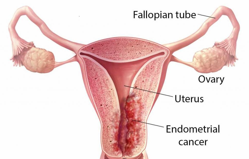 Mayo researchers' endometrial cancer discovery could lead to window of opportunity for prevention