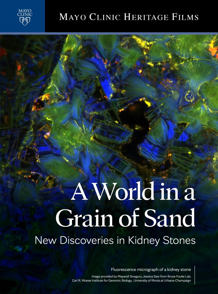 A World in a Grain of Sand: New Discoveries in Kidney Stones