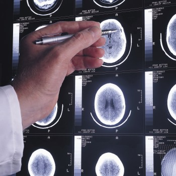 Multipronged approach takes aim at malignant brain tumors