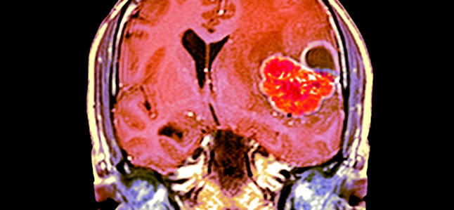 Colored coronal magnetic resonance imaging (MRI) scan through the head of a 48-year-old male patient with a glioblastoma (red), with surrounding oedema (fluid) that is compressing the left ventricle (at right). A glioblastoma is a particularly malignant brain cancer that arises from the supporting glial cells in the brain. Treatment is with a combination of surgery and radiotherapy, but the prognosis is poor.