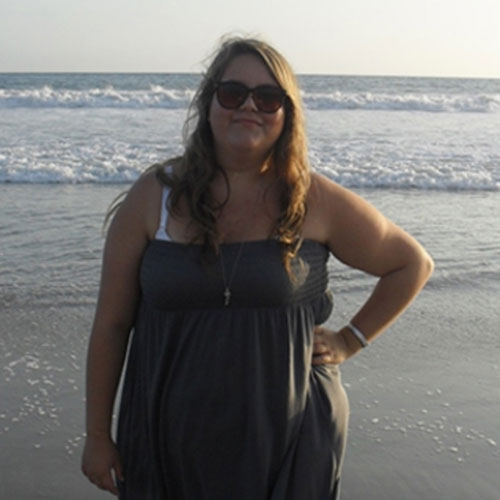 Sleeve Gastrectomy: The sleeve gastrectomy was the tool I needed to turn my weight loss failures into a weight loss success story