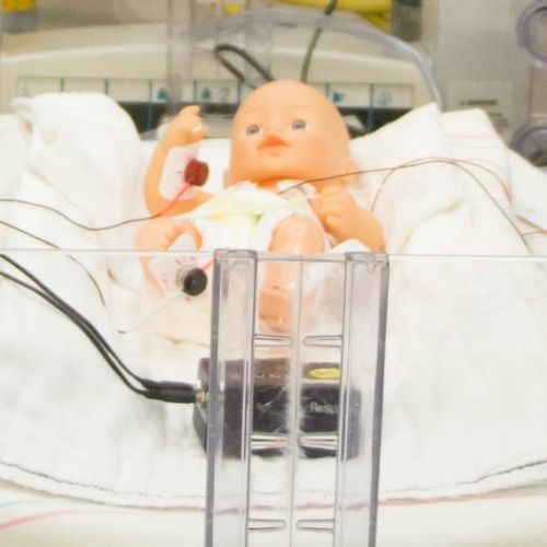 Simple treatment could help preemies breathe better