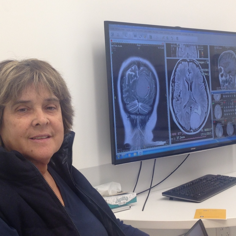 A trip from a meningioma diagnose to a second life through UCLA