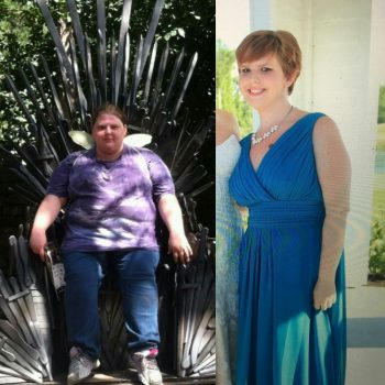 Gastric Bypass Saved My Life