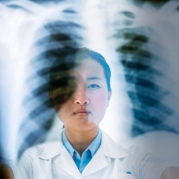 New drug offers greater hope for some patients with lung cancer