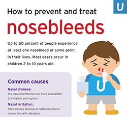 How to prevent and treat nosebleeds