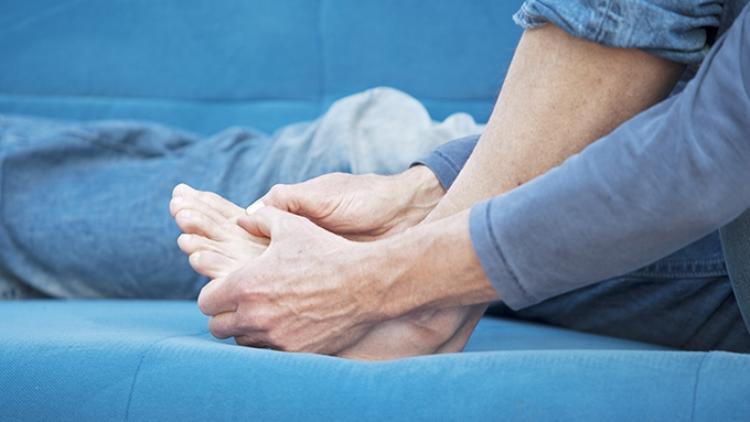 Bunions and Bunion Surgery