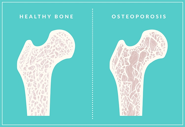 50+ Osteoporosis: Prevention and Treatment