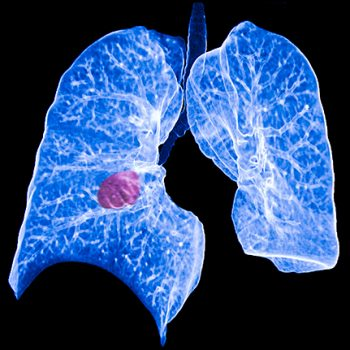 Lung cancer screening offers early detection