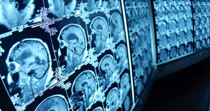 Image of brain scan images