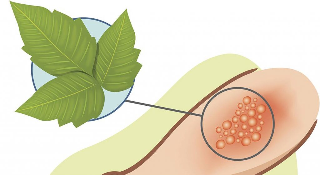 Rashes from Poison Ivy and Oak: Tips to Bring You Relief