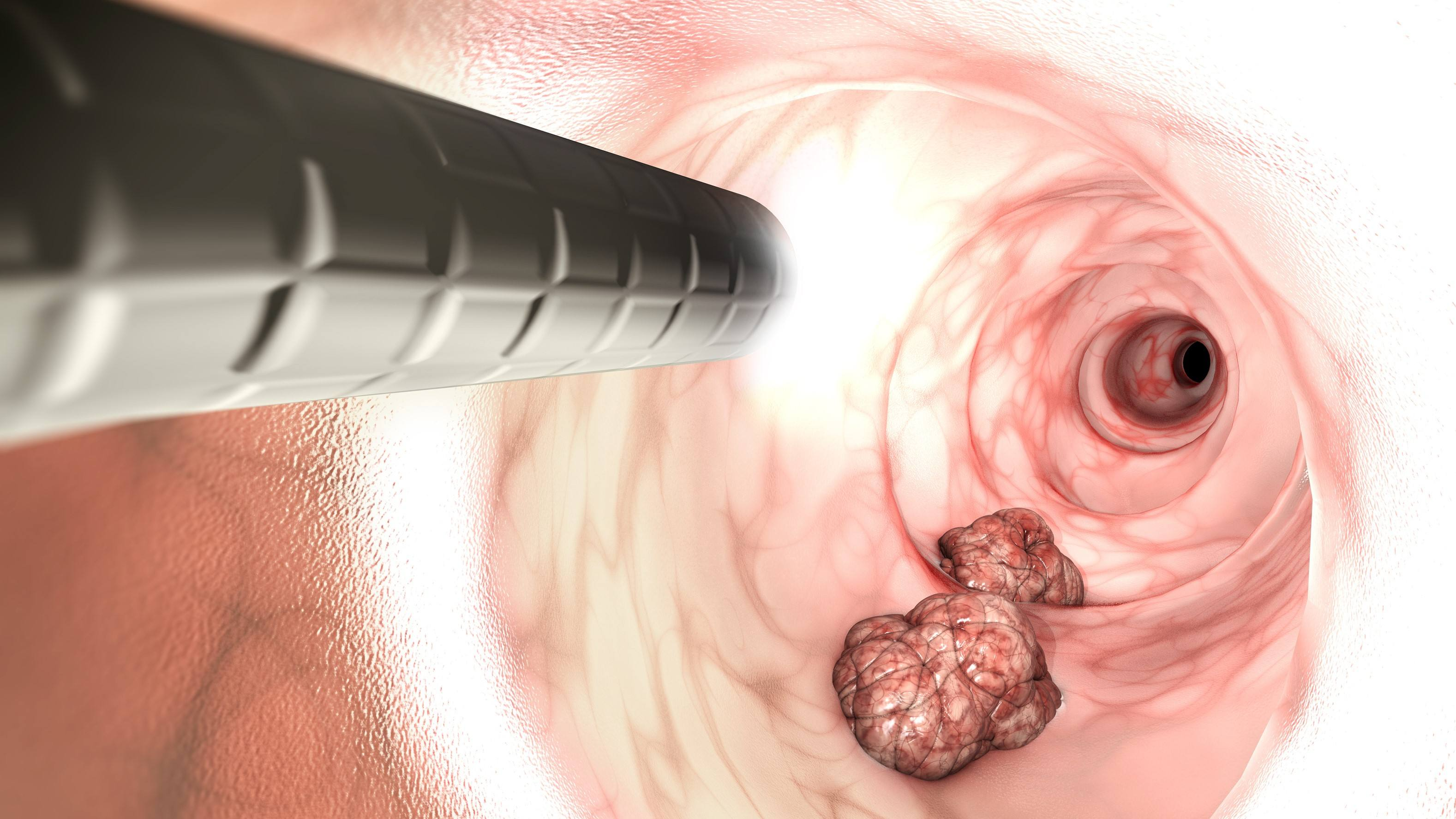 Rise in colorectal cancer among adults younger than 50 leads to new screening guidelines