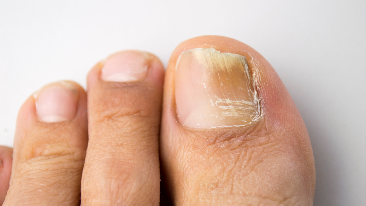 Toenail fungus remedies abound in letters from readers