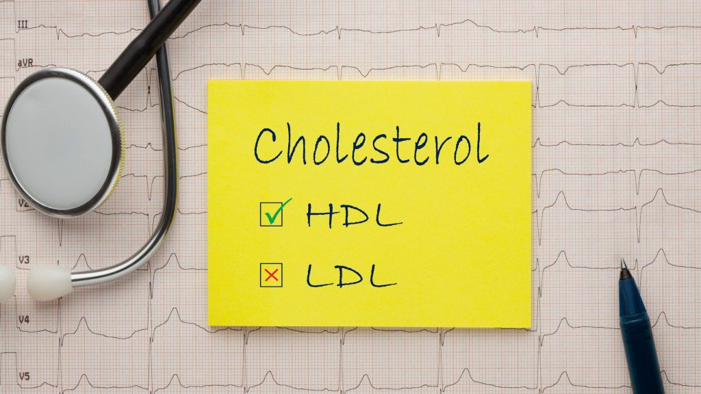 High cholesterol? Here's what you can do about it