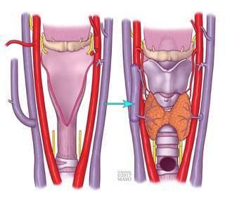 Representação do transplante de laringe