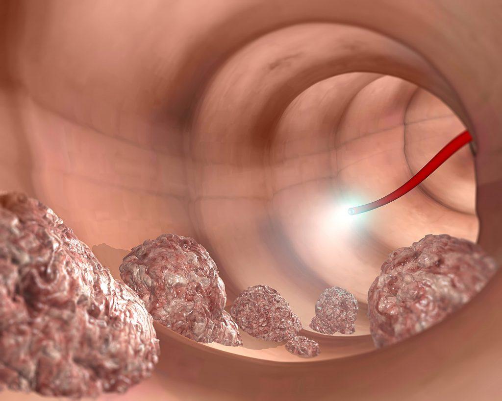 Ilustração Médica do exame de colonoscopia; cólon do sistema digestório