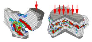 When a load is added to the model, the colors show regions where the simulation suggests bone tissue may fail. The gray elements in the model are included to distribute loads evenly over the bone's surface. White represents tissue that does not fail under the simulated conditions, colors from blue to yellow indicate increasing potential of failure, and red indicates the highest level of potential failure. Reprinted with permission from the Radiological Society of North America: Radiology, Fidler et al., 2016; volume 278: pages 172-180. (Figure 1c)