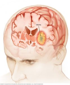 Gliomas begin in the gluey supportive (glial cells) that surround nerve cells in the brain.