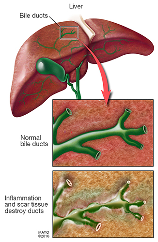 In PSC, inflammation causes scars within the bile ducts. These scars make the ducts hard and narrow and gradually cause serious liver damage.