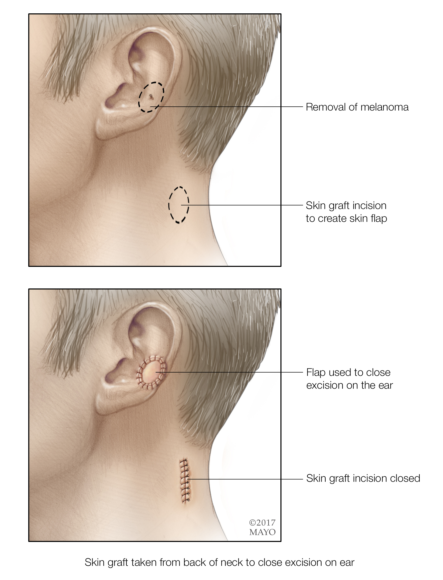 What do we hear about melanoma of the ear? | Discovery's Edge