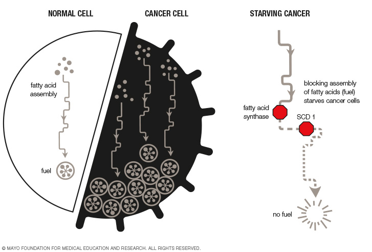 Starving Cancer | Discovery's Edge