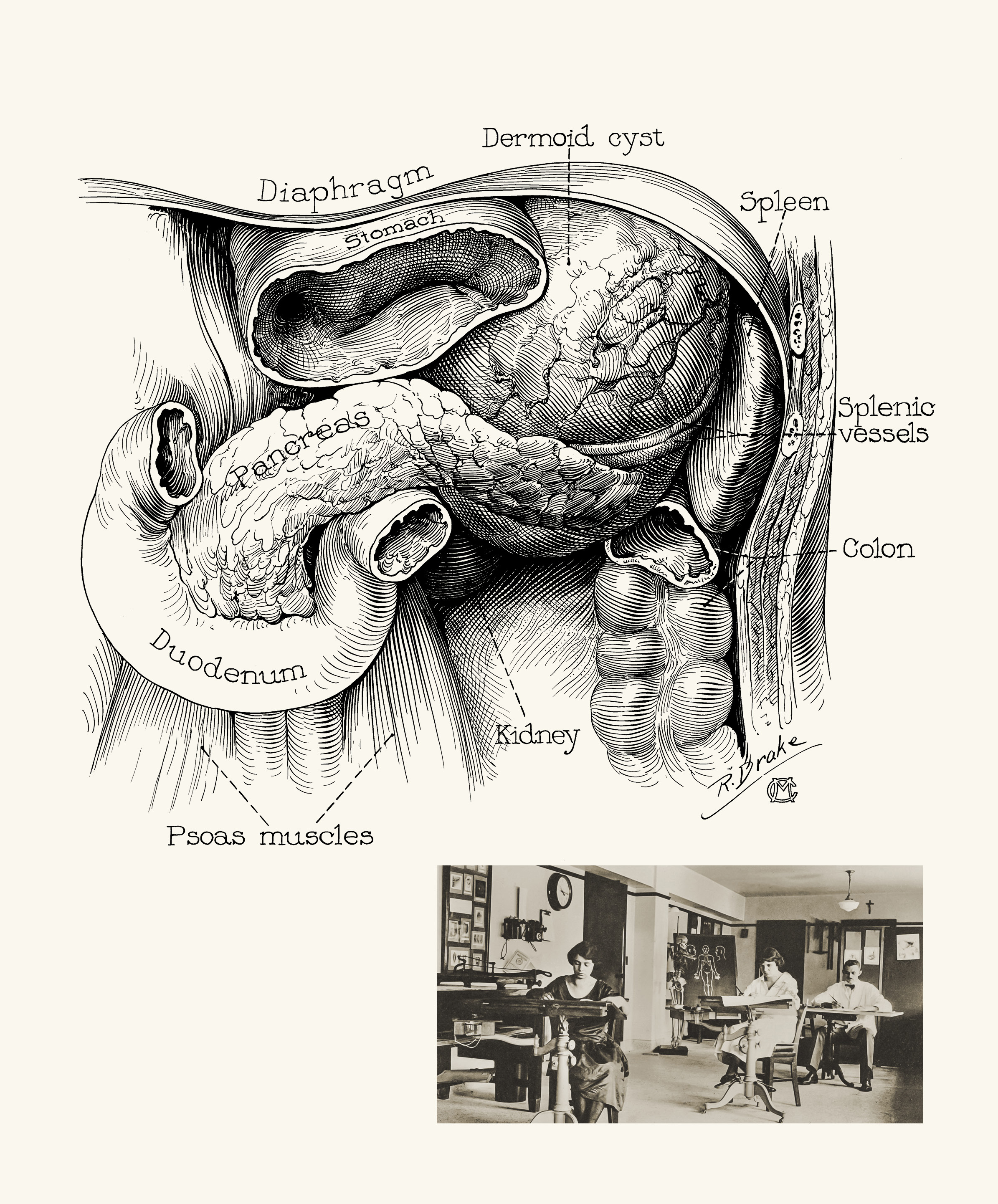 Medical Illustration Clarifies Medical Practice | Discovery\'s Edge