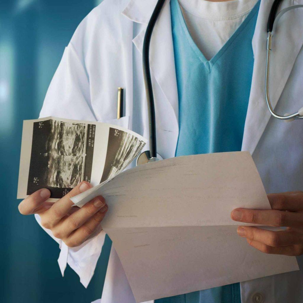 医务人员戴着听诊器,拿着乳房X光照片打印输出